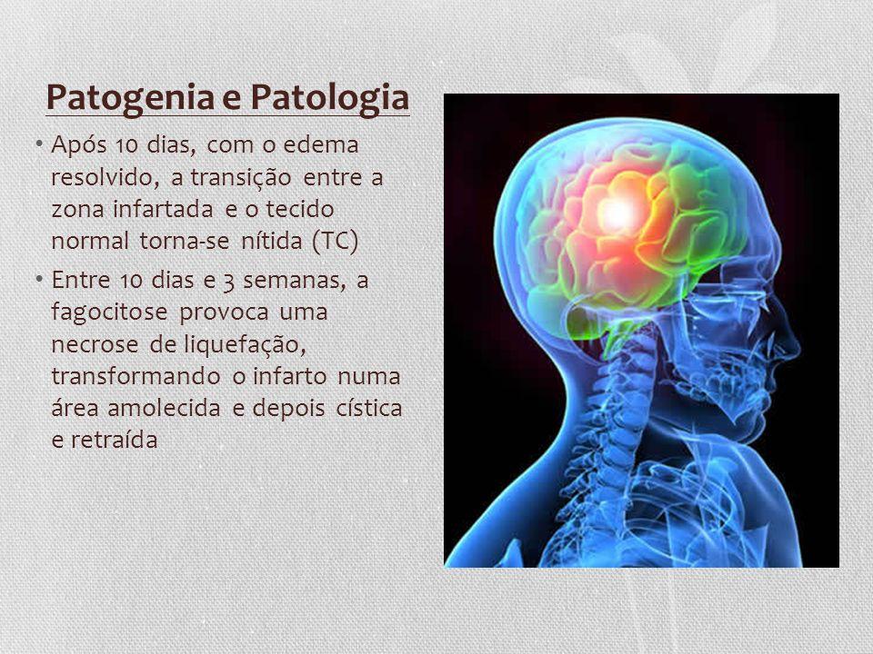 Patogenia e Patologia Após 10 dias, com o edema resolvido, a transição entre a zona infartada e o tecido normal torna-se nítida (TC)