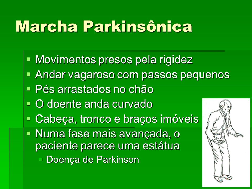 Marcha Parkinsônica Movimentos presos pela rigidez