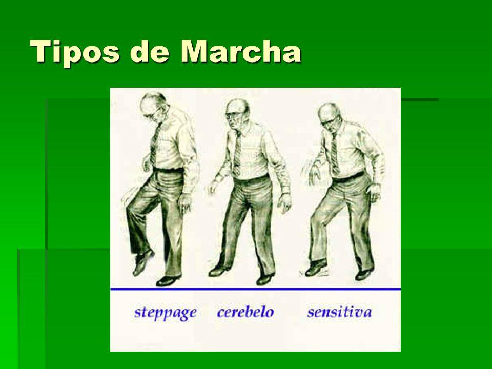 Tipos de Marcha