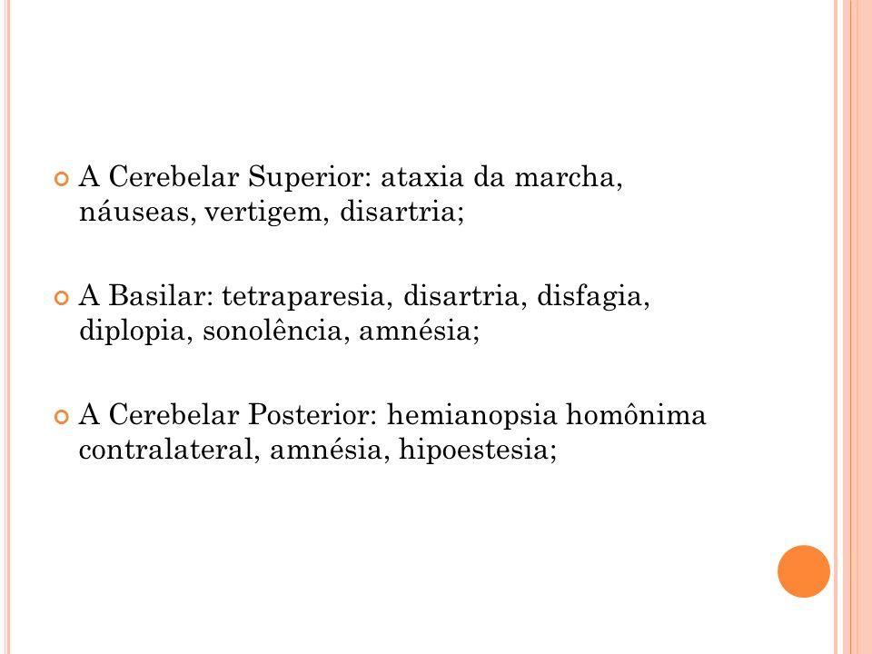 A Cerebelar Superior: ataxia da marcha, náuseas, vertigem, disartria;