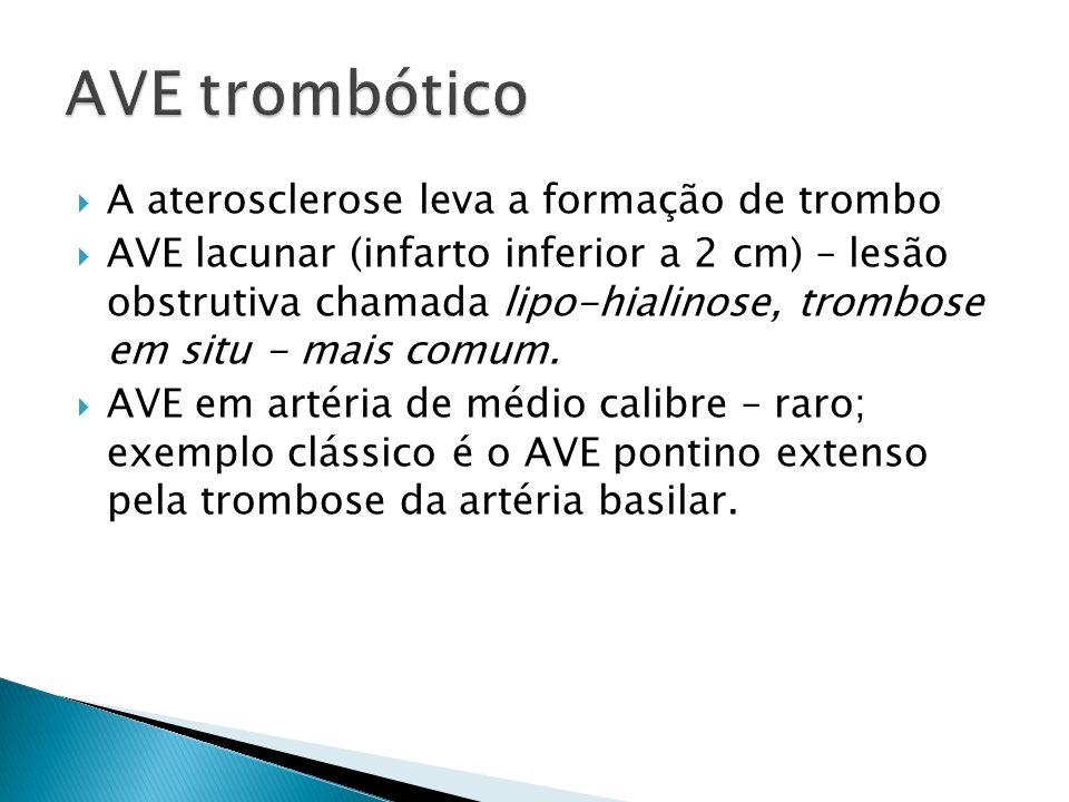 AVE trombótico A aterosclerose leva a formação de trombo