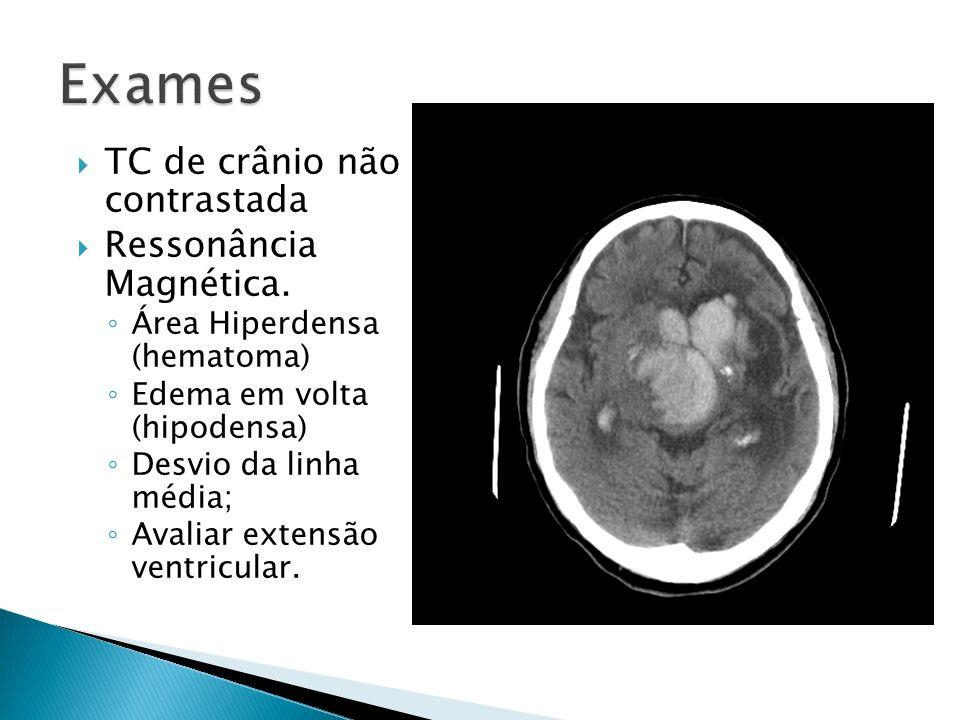 Exames TC de crânio não contrastada Ressonância Magnética.