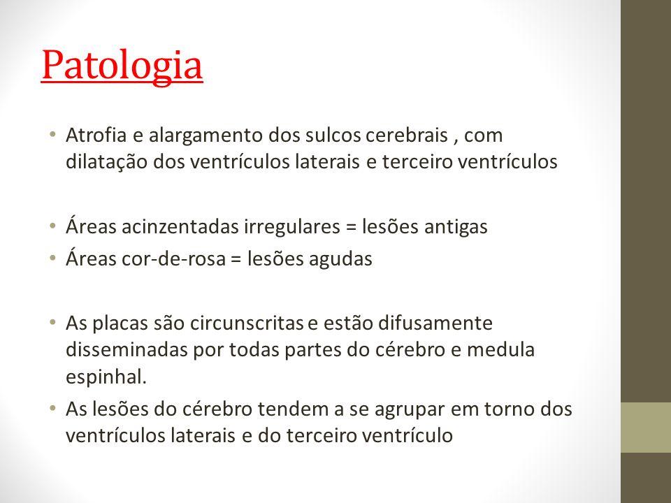 Patologia Atrofia e alargamento dos sulcos cerebrais , com dilatação dos ventrículos laterais e terceiro ventrículos.