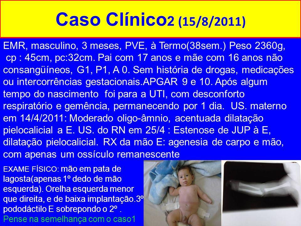 Caso Clínico2 (15/8/2011) EMR, masculino, 3 meses, PVE, à Termo(38sem.) Peso 2360g,