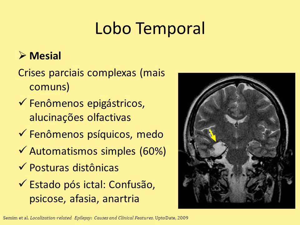 Lobo Temporal Mesial Crises parciais complexas (mais comuns)