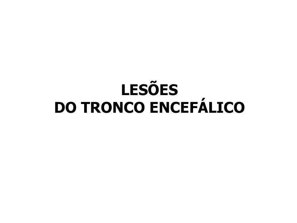 LESÕES DO TRONCO ENCEFÁLICO