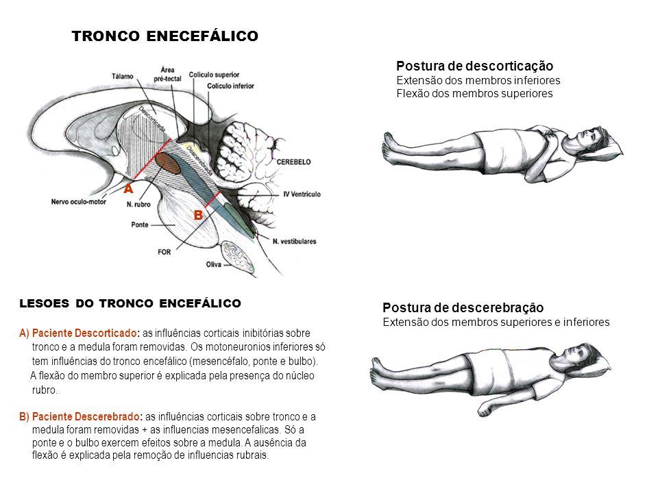 TRONCO ENECEFÁLICO Postura de descorticação A B