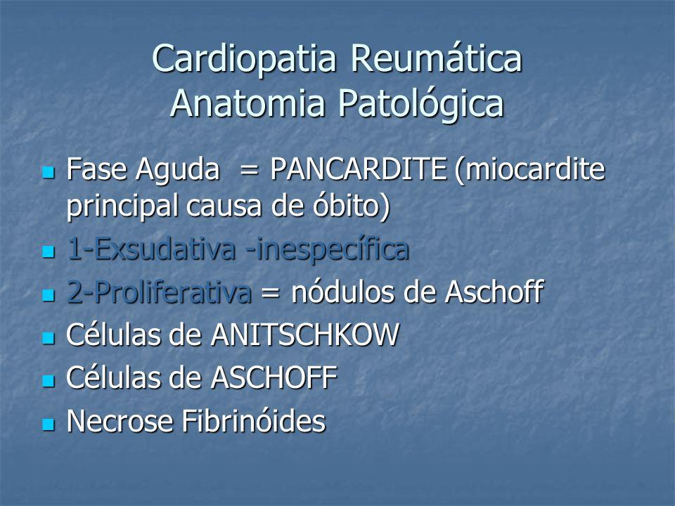 Cardiopatia Reumática Anatomia Patológica