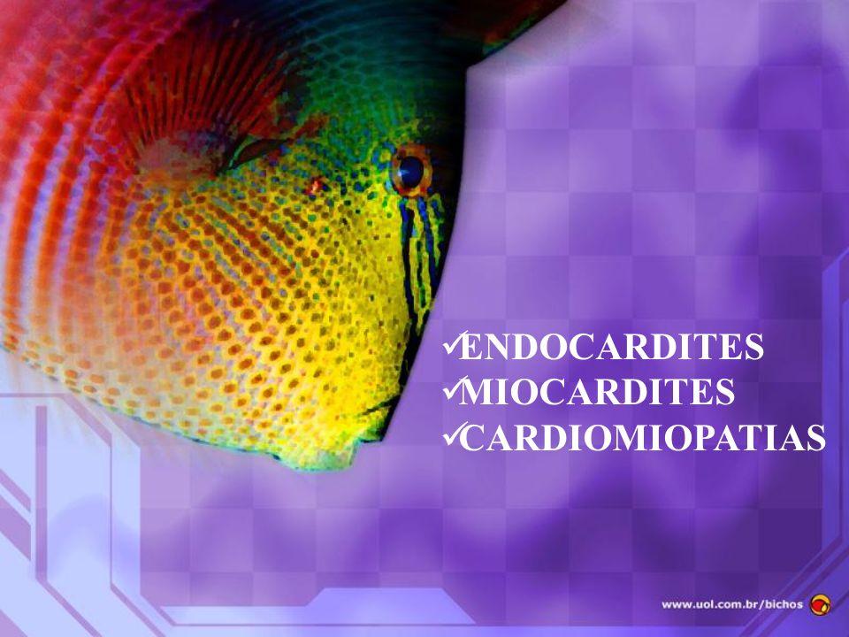 ENDOCARDITES MIOCARDITES CARDIOMIOPATIAS