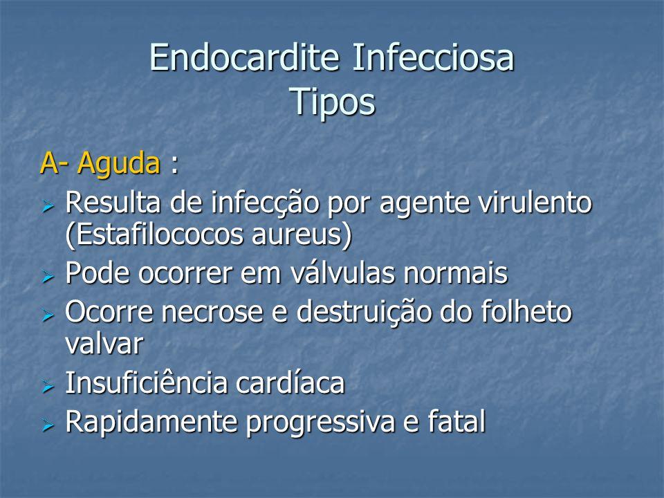 Endocardite Infecciosa Tipos