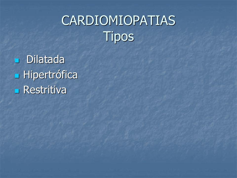 CARDIOMIOPATIAS Tipos