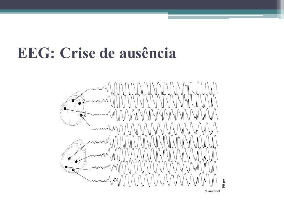 EEG: Crise de ausência