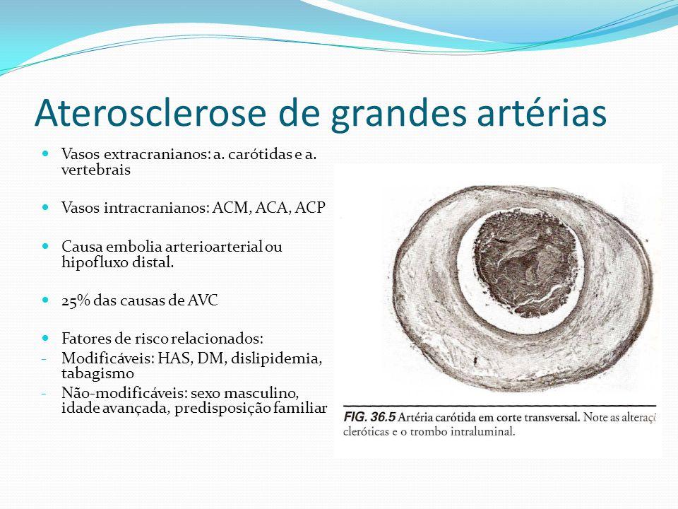 Aterosclerose de grandes artérias