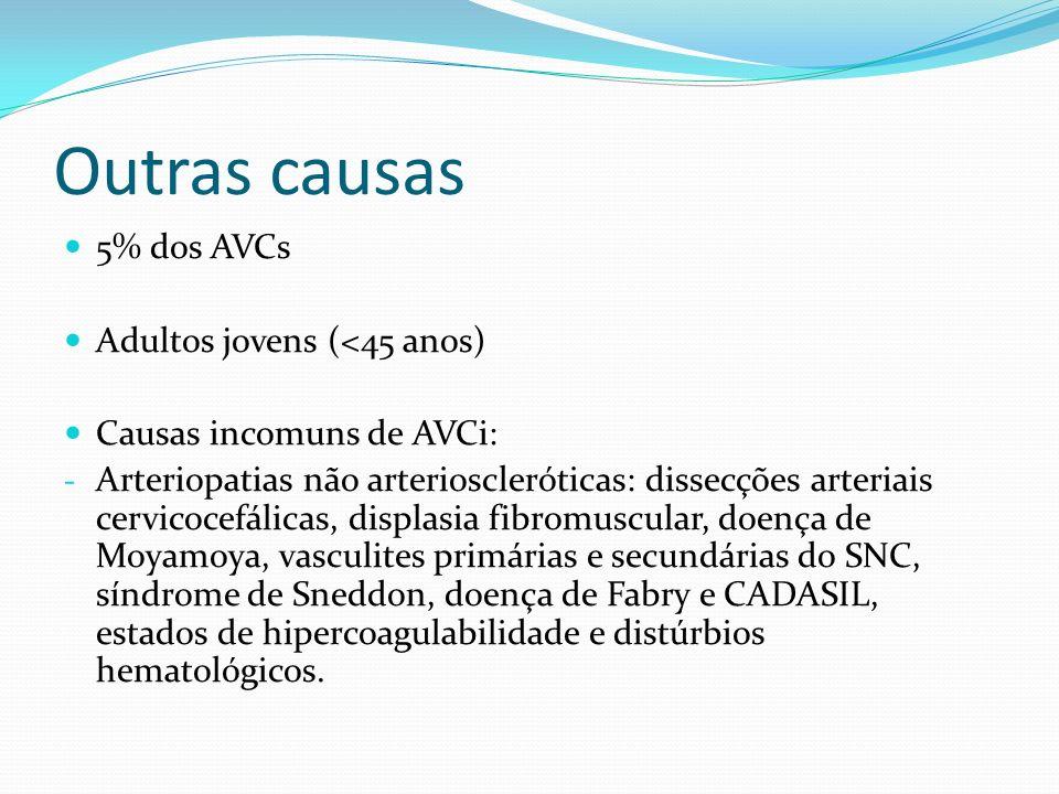 Outras causas 5% dos AVCs Adultos jovens (<45 anos)
