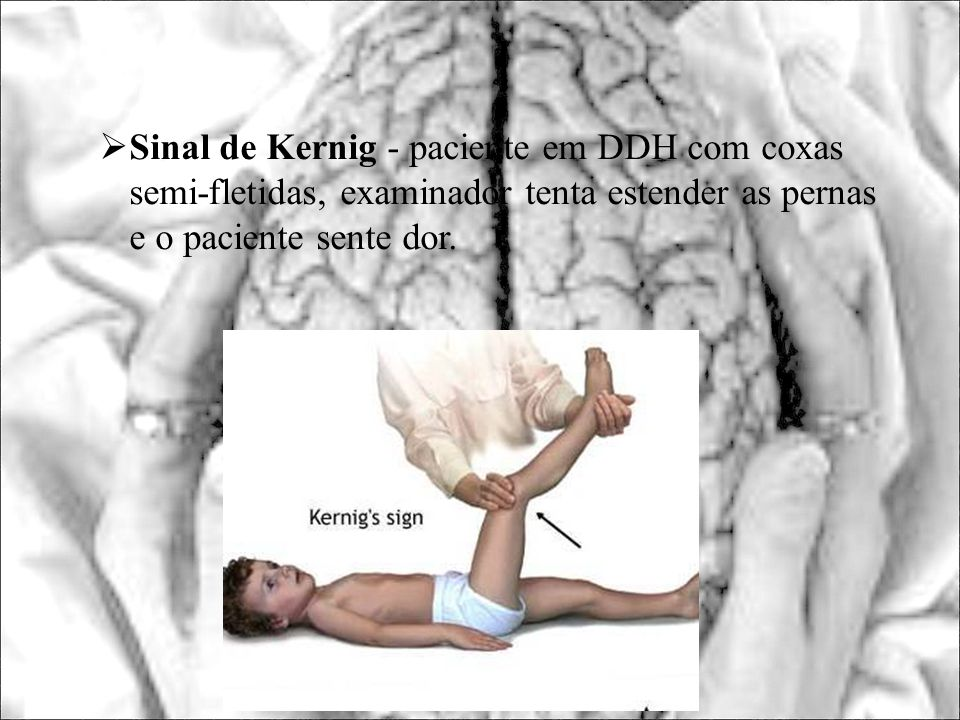 Sinal de Kernig - paciente em DDH com coxas semi-fletidas, examinador tenta estender as pernas e o paciente sente dor.