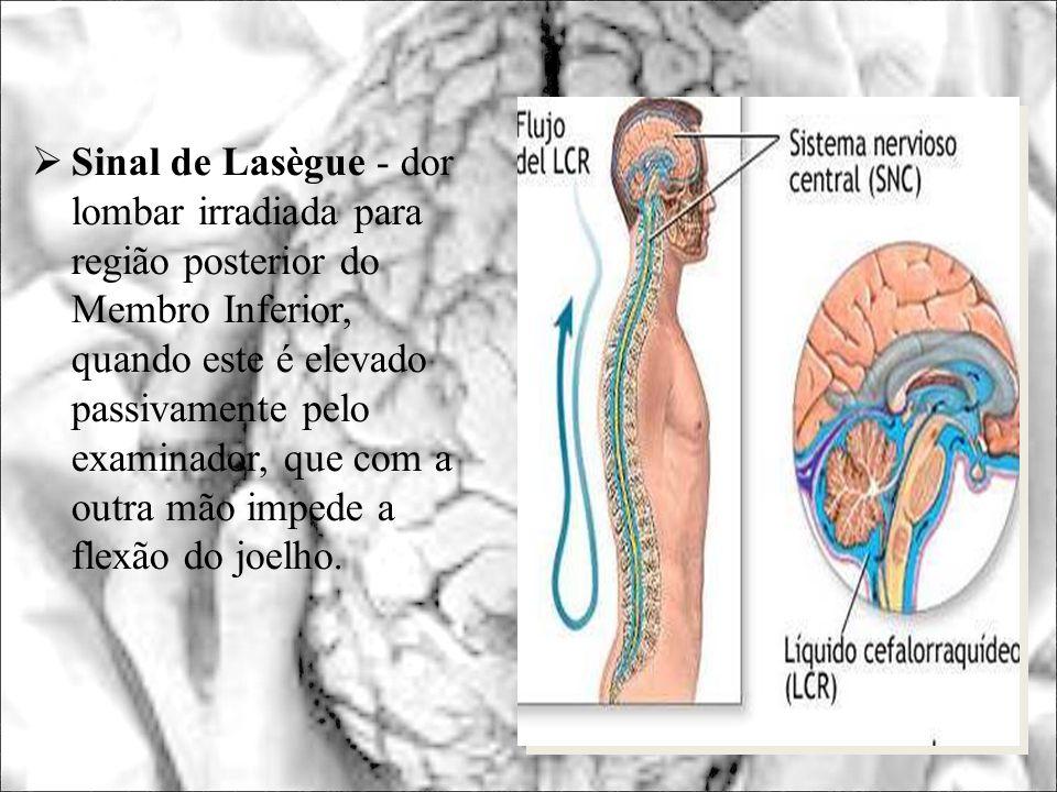 Sinal de Lasègue - dor lombar irradiada para região posterior do Membro Inferior, quando este é elevado passivamente pelo examinador, que com a outra mão impede a flexão do joelho.