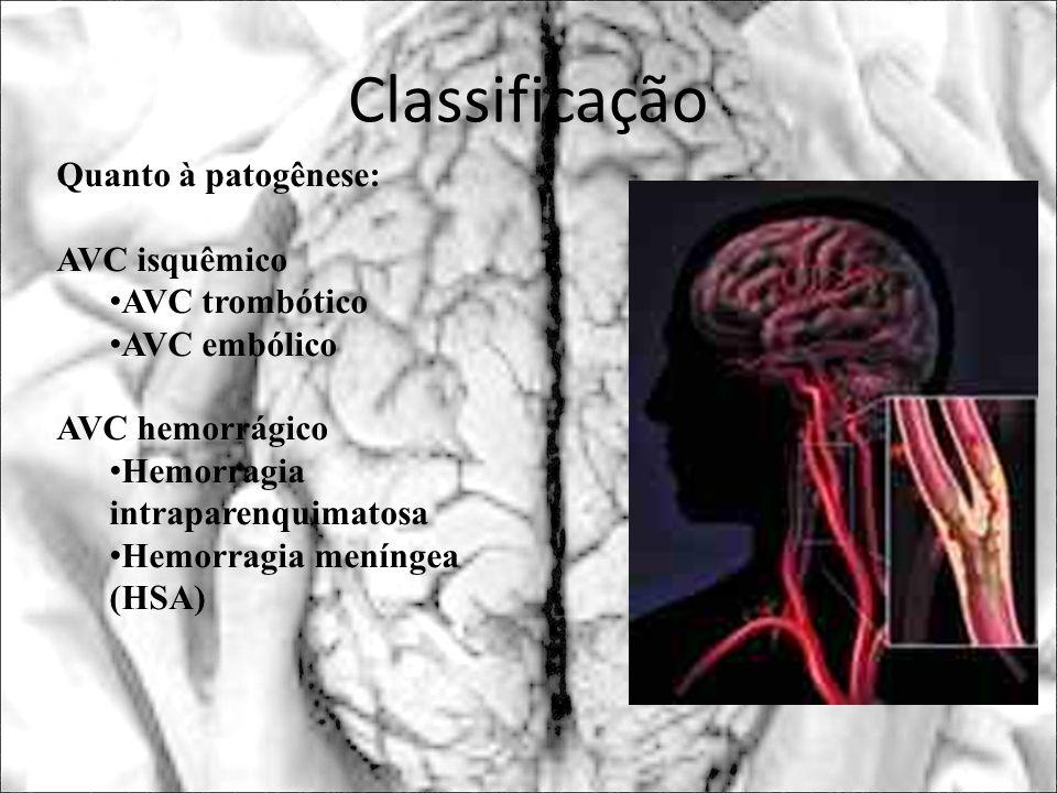 Classificação Quanto à patogênese: AVC isquêmico AVC trombótico