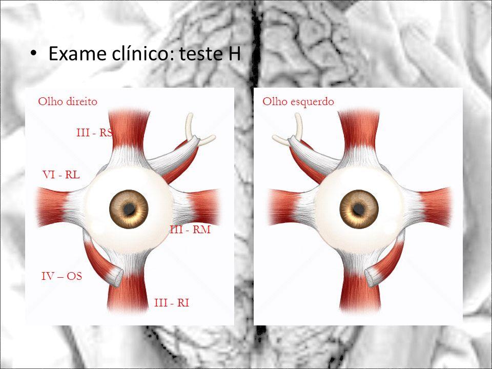 Exame clínico: teste H Olho direito Olho esquerdo III - RS VI - RL