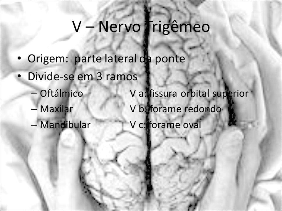 V – Nervo Trigêmeo Origem: parte lateral da ponte Divide-se em 3 ramos
