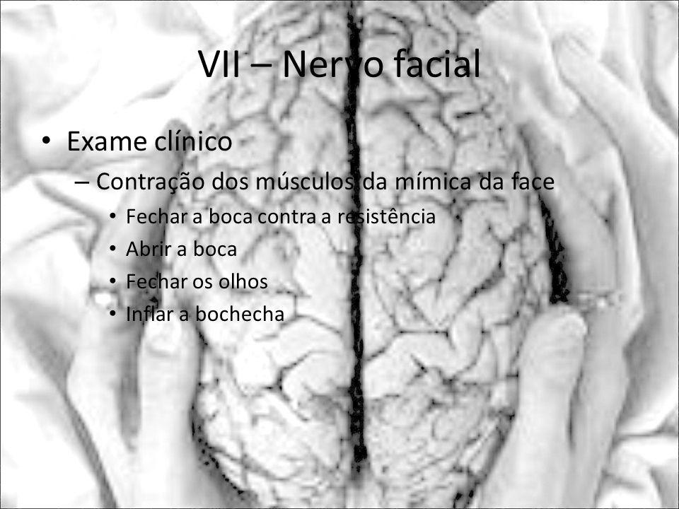 VII – Nervo facial Exame clínico