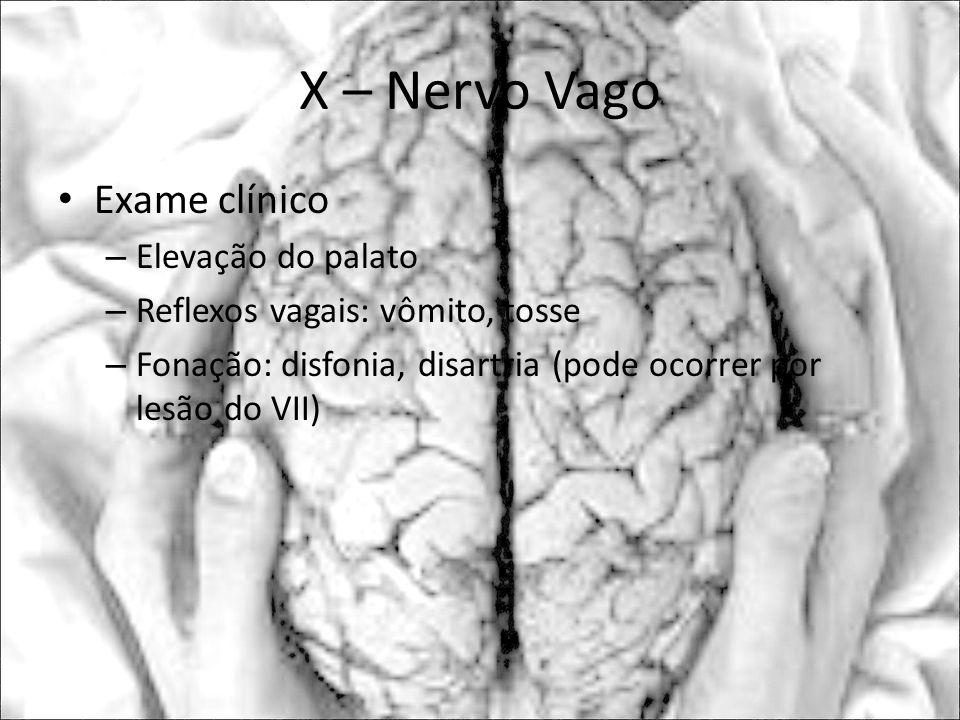 X – Nervo Vago Exame clínico Elevação do palato