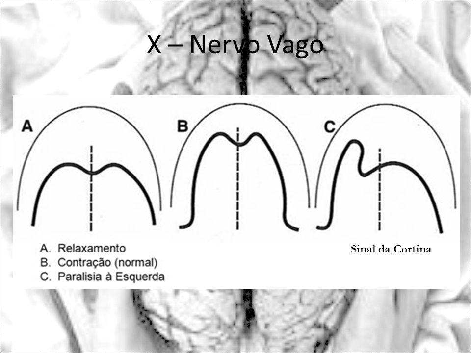 X – Nervo Vago Sinal da Cortina