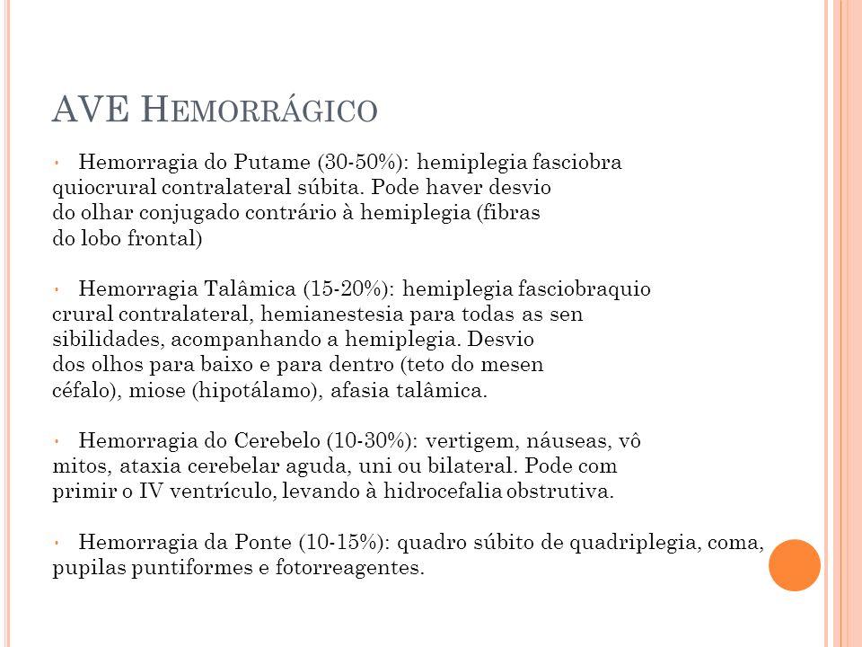 AVE Hemorrágico Hemorragia do Putame (30-50%): hemiplegia fasciobra