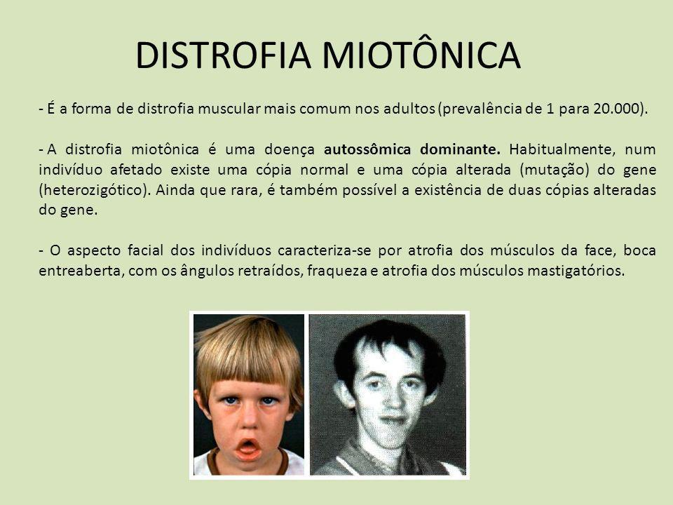 DISTROFIA MIOTÔNICA É a forma de distrofia muscular mais comum nos adultos (prevalência de 1 para 20.000).