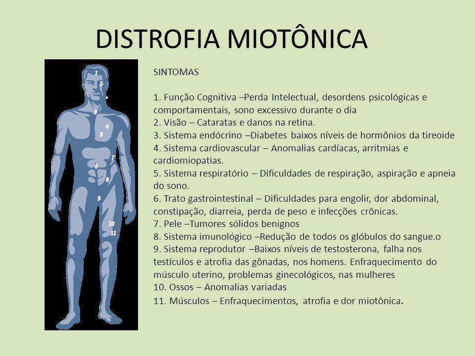 DISTROFIA MIOTÔNICA SINTOMAS