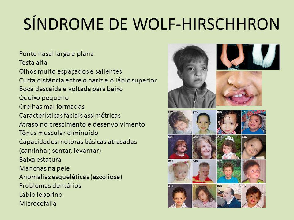 SÍNDROME DE WOLF-HIRSCHHRON