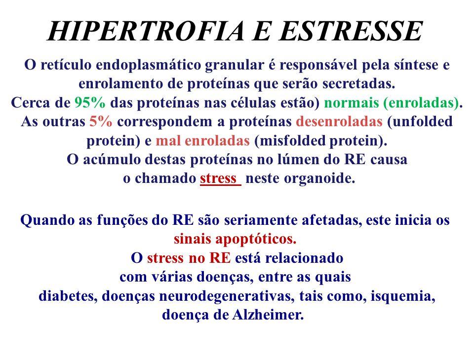 HIPERTROFIA E ESTRESSE