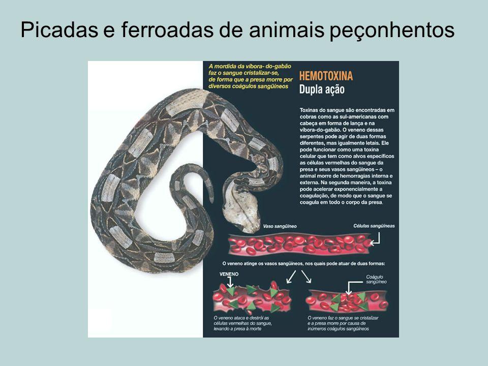 Picadas e ferroadas de animais peçonhentos