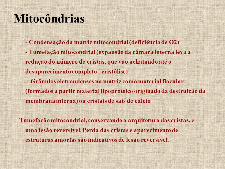 Mitocôndrias - Condensação da matriz mitocondrial (deficiência de O2)