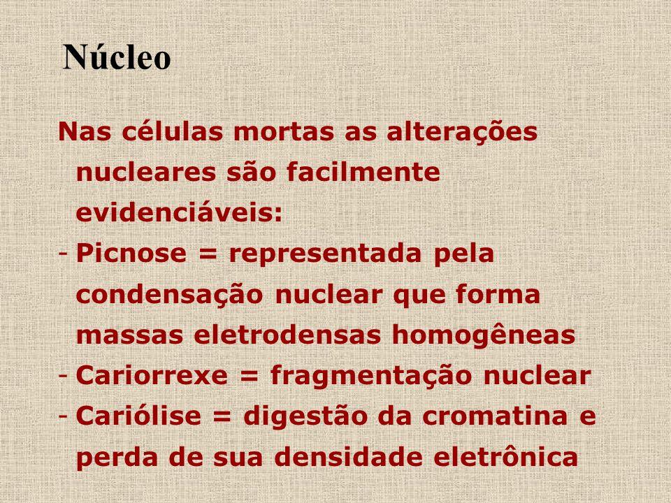 Núcleo Nas células mortas as alterações nucleares são facilmente evidenciáveis: