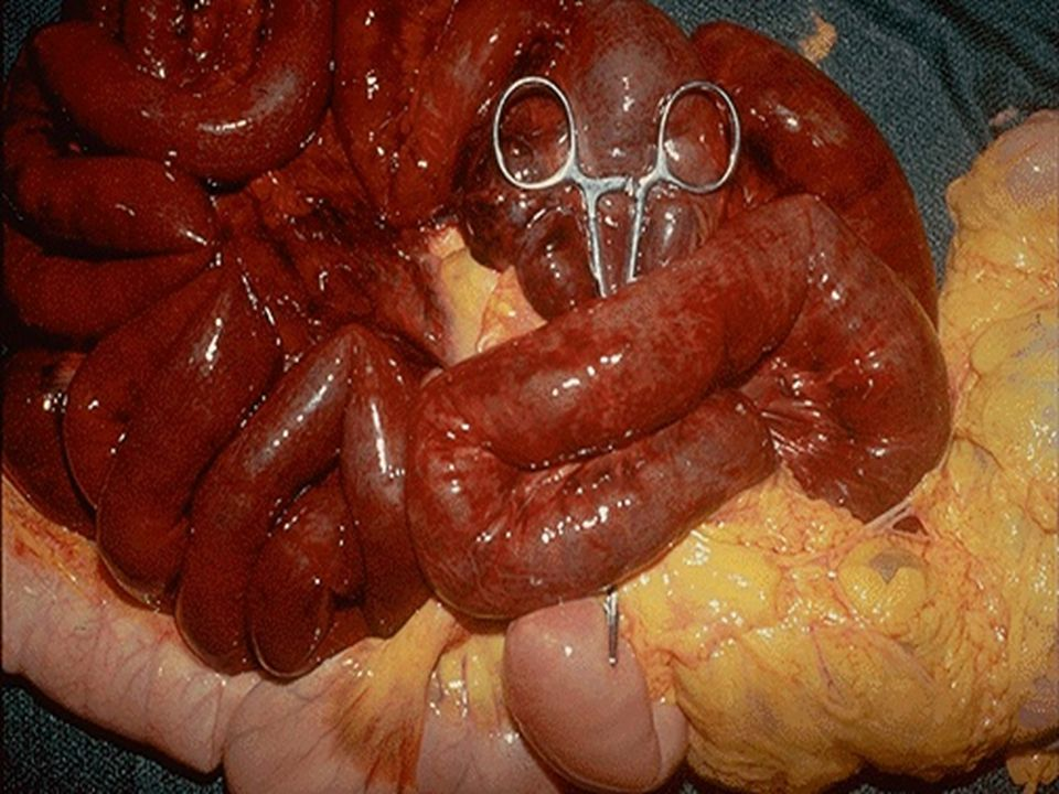 The small intestine is infarcted