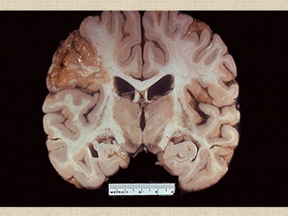 Grossly, the cerebral infarction at the upper left here demonstrates liquefactive necrosis.
