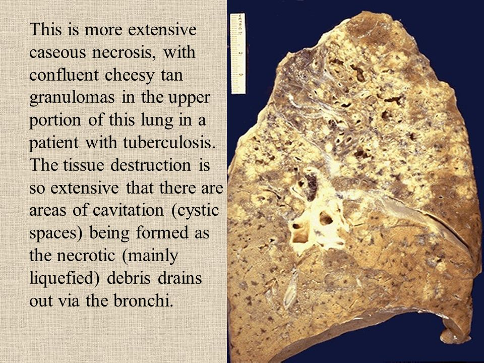 This is more extensive caseous necrosis, with confluent cheesy tan granulomas in the upper portion of this lung in a patient with tuberculosis.