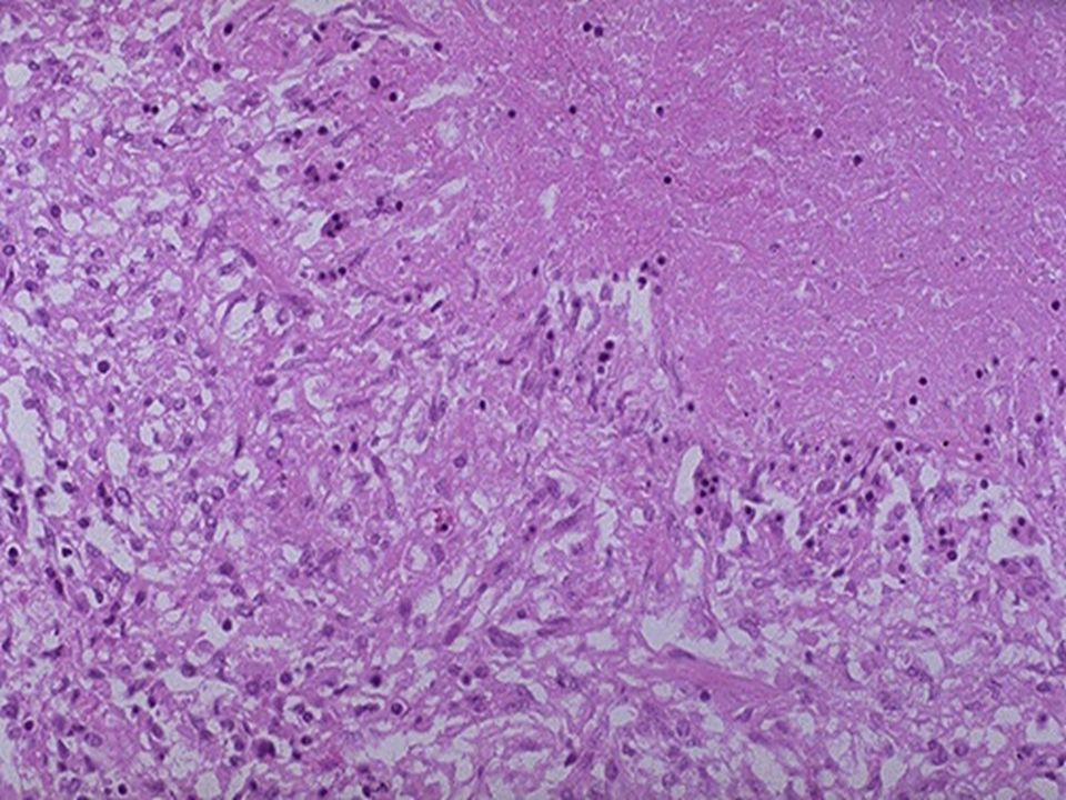 Microscopically, caseous necrosis is characterized by acellular pink areas of necrosis, as seen here at the upper right, surrounded by a granulomatous inflammatory process.