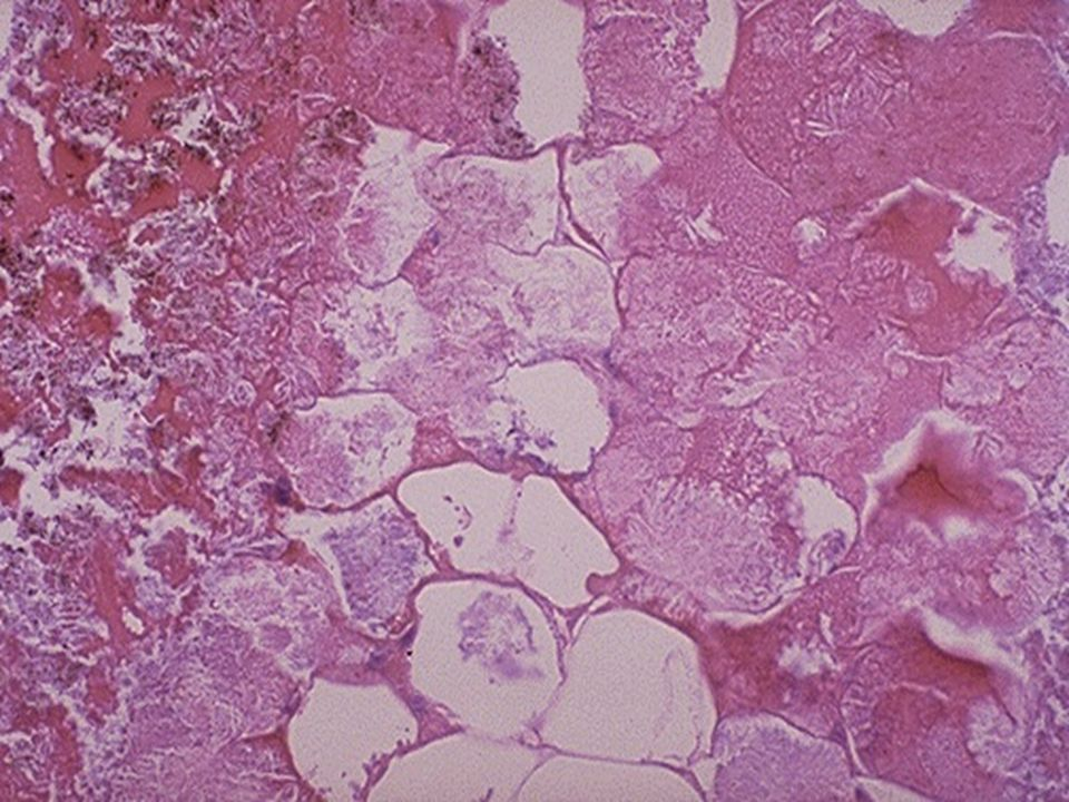 Microscopically, fat necrosis is seen here