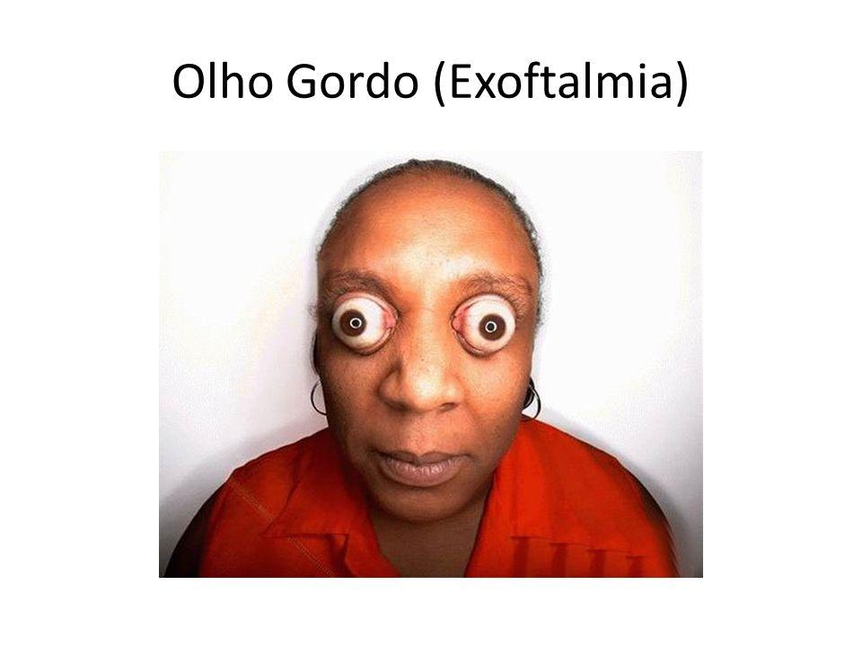 Olho Gordo (Exoftalmia)