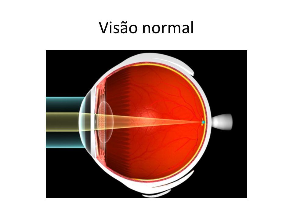 Visão normal