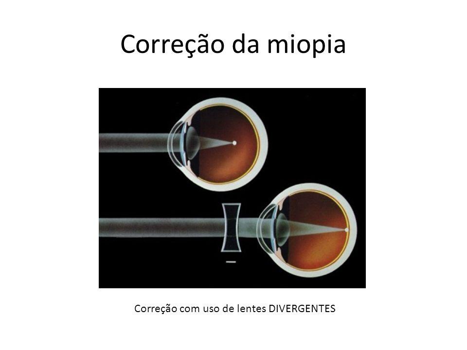 Correção com uso de lentes DIVERGENTES