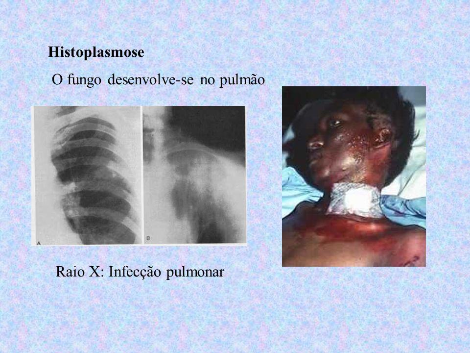 Histoplasmose O fungo desenvolve-se no pulmão Raio X: Infecção pulmonar
