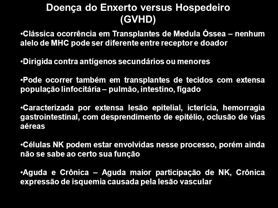 Doença do Enxerto versus Hospedeiro (GVHD)