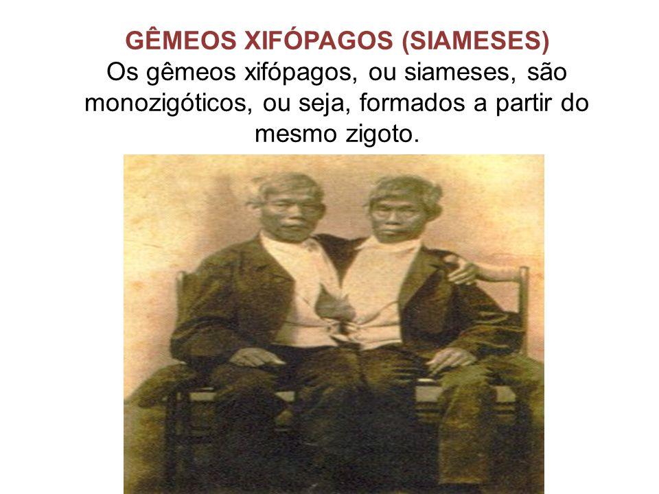 GÊMEOS XIFÓPAGOS (SIAMESES)