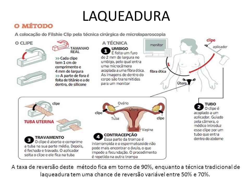 LAQUEADURA
