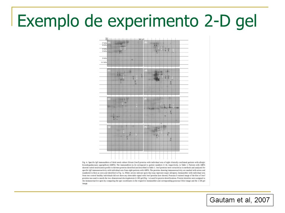 Exemplo de experimento 2-D gel