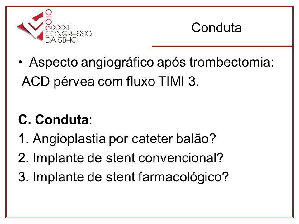 Conduta Aspecto angiográfico após trombectomia: ACD pérvea com fluxo TIMI 3. C. Conduta: 1. Angioplastia por cateter balão