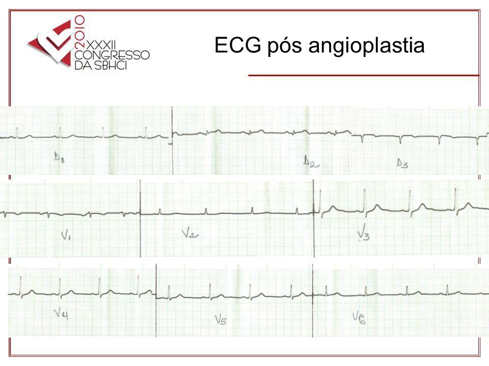ECG pós angioplastia