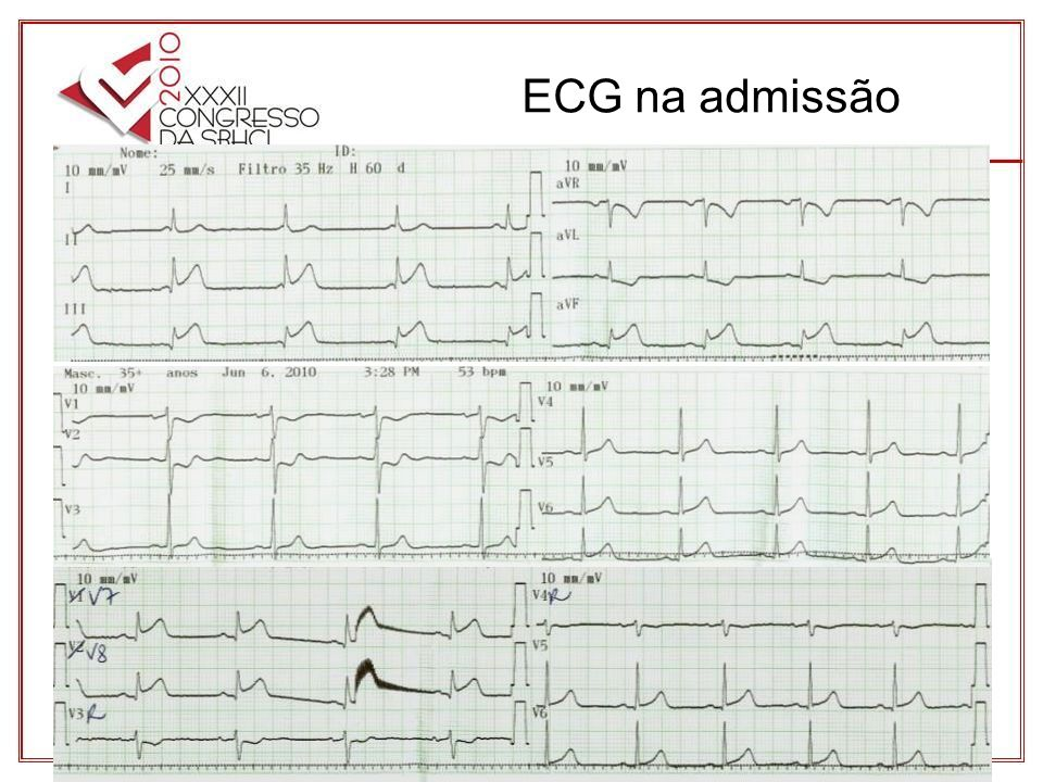 ECG na admissão